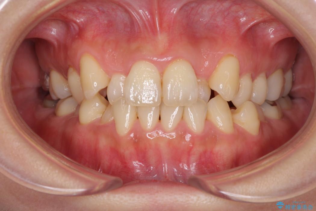 インビザラインで前歯のでこぼこをきれいに 治療前