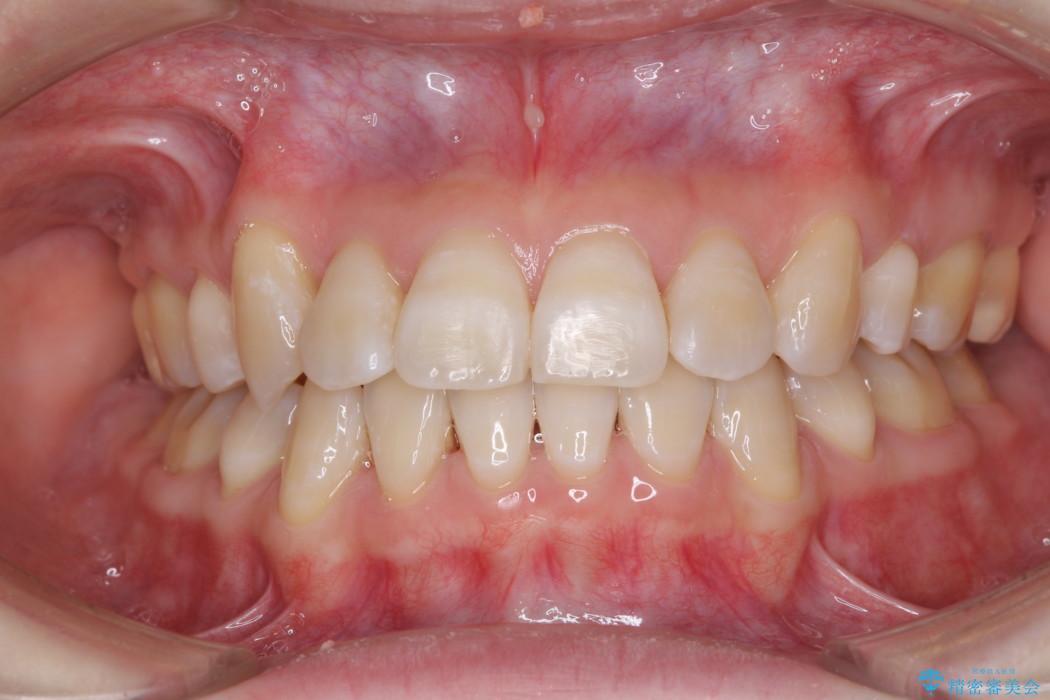 歯並びのでこぼこが気になって口を開けて笑えない 表側の目立たない装置での抜歯矯正 アフター