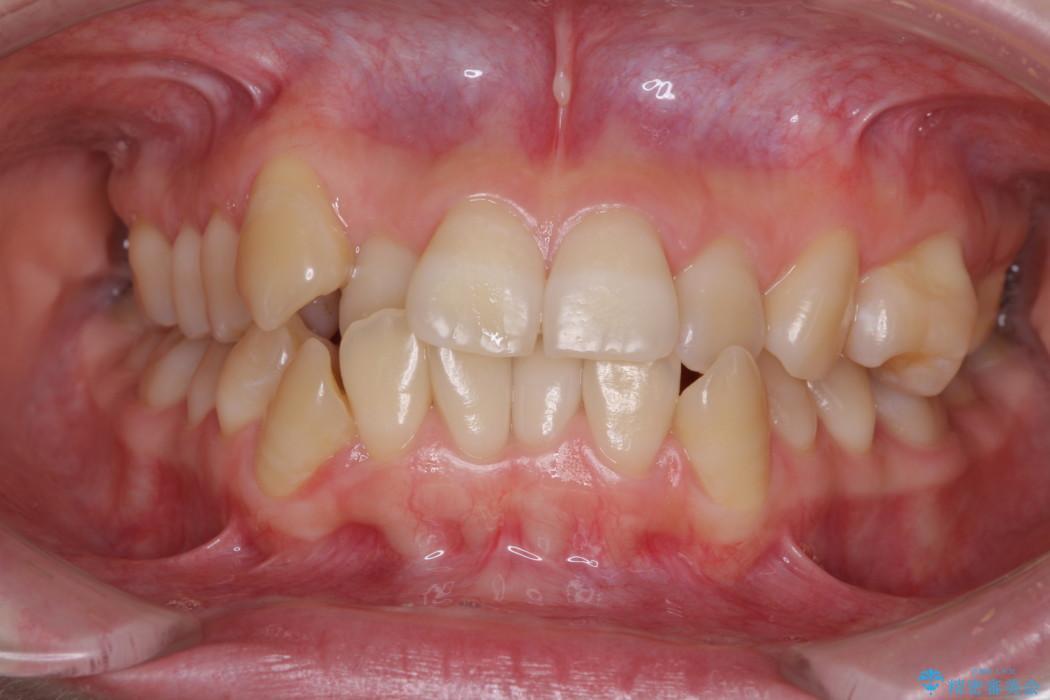 歯並びのでこぼこが気になって口を開けて笑えない 表側の目立たない装置での抜歯矯正 ビフォー