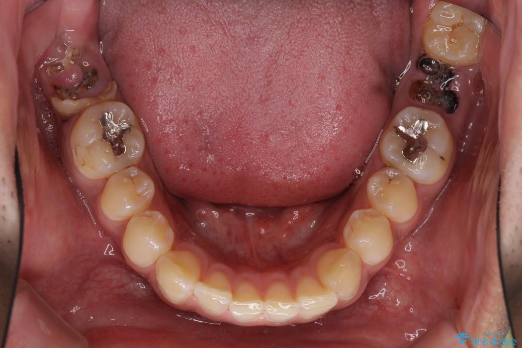 虫歯だらけの奥歯 セラミックやインプラントによる虫歯治療 治療前画像