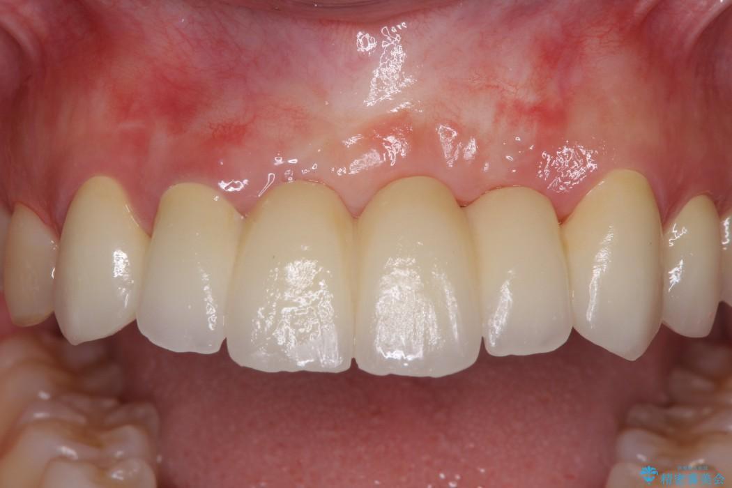 事故で抜けかけた歯 歯が溶けてしまった方の歯茎の再生、ブリッジ治療 治療後画像