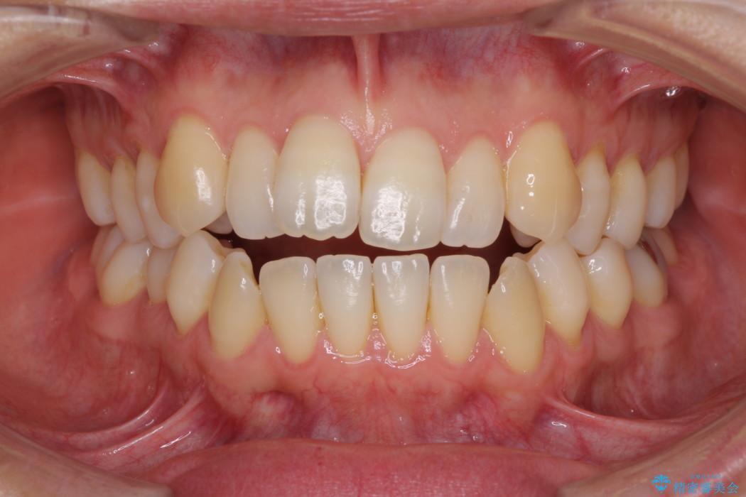 インビザラインによるオープンバイト治療 顎の負担も軽減 治療前