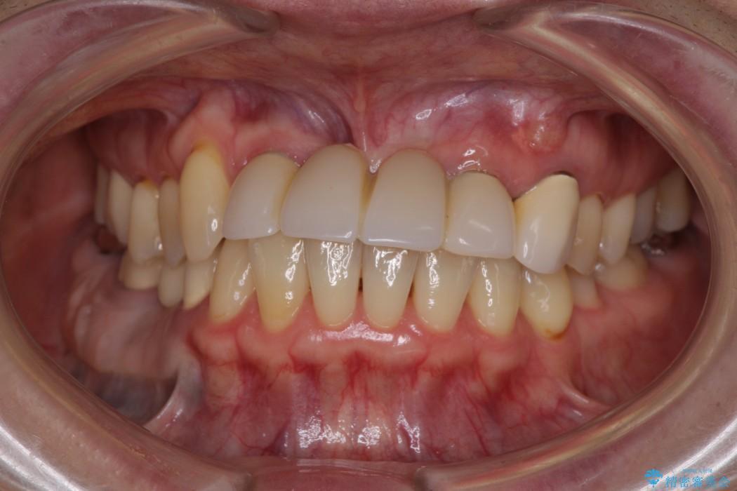 前歯がグラグラ ブリッジの形も気に入らない 治療前画像