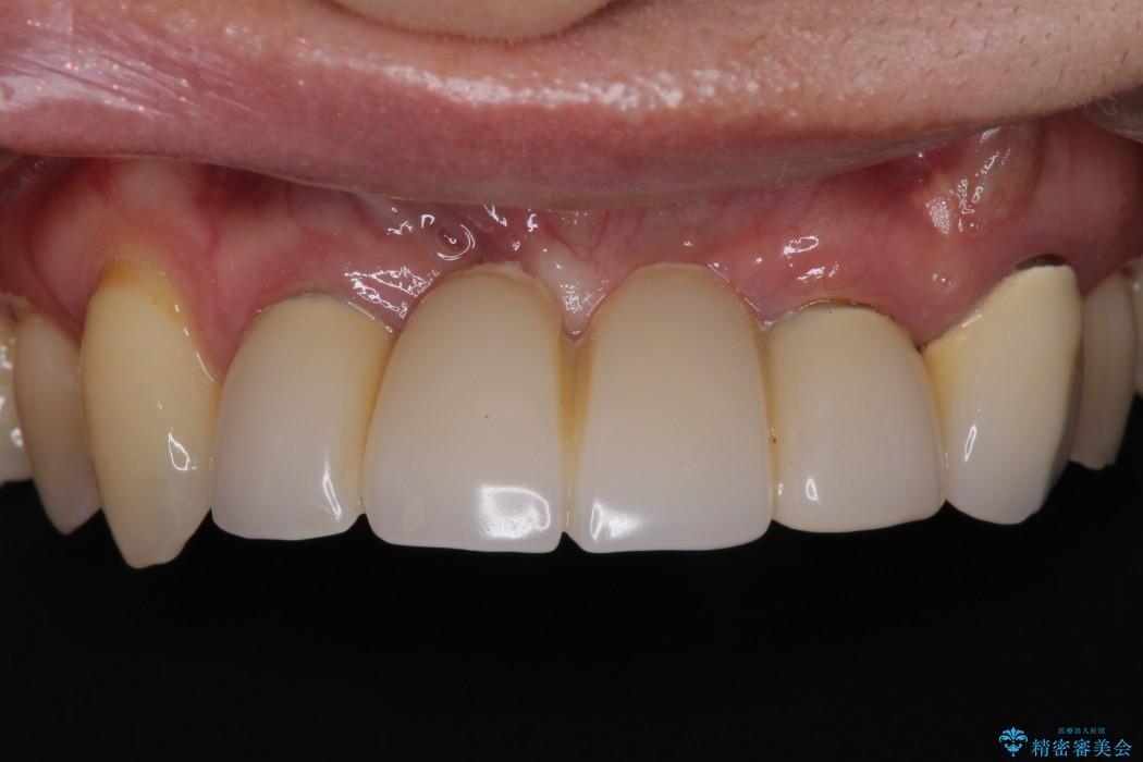 前歯がグラグラ ブリッジの形も気に入らない 治療前