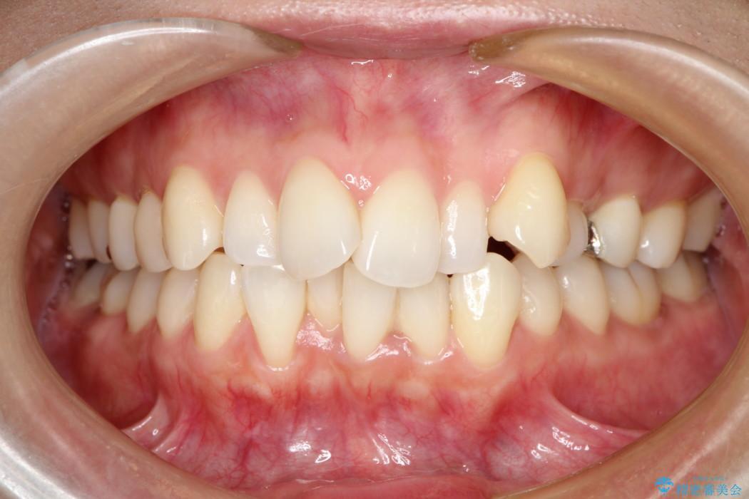 出っ歯を治したい メタル装置による抜歯矯正治療 治療前画像