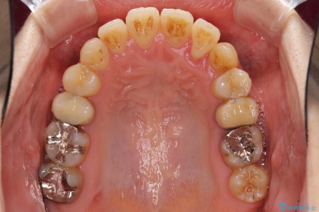 結婚式までに前歯を整えたい 上顎骨の拡大を併用した抜歯矯正 アフター