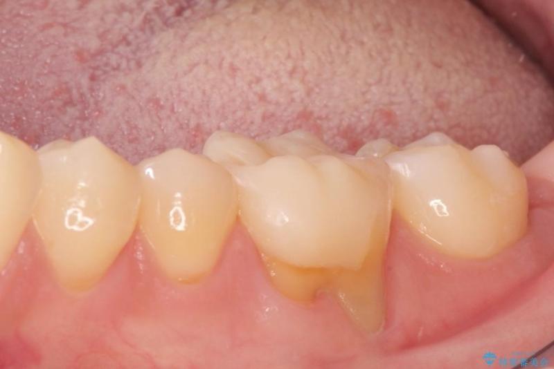 下がった歯茎を改善 歯肉移植による根面被覆 治療前