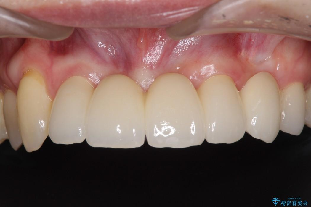 前歯がグラグラ ブリッジの形も気に入らない 治療後画像
