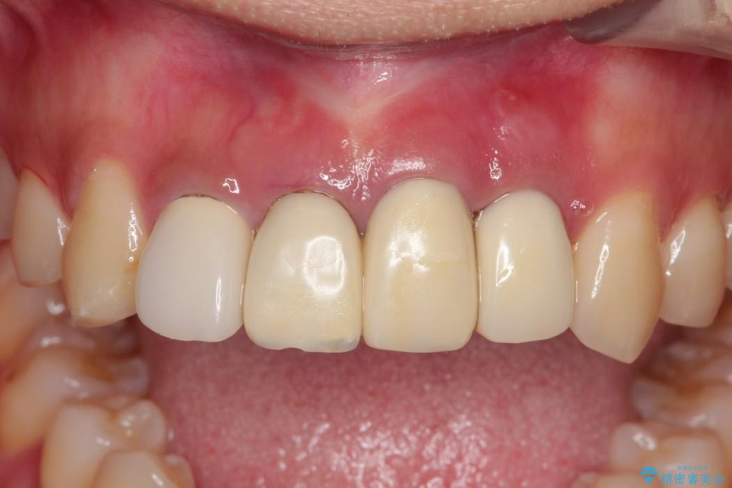 事故で抜けかけた歯 歯が溶けてしまった方の歯茎の再生、ブリッジ治療 ビフォー