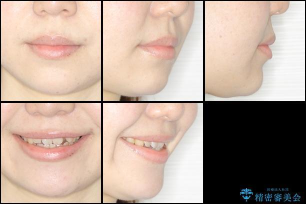 結婚式までに前歯を整えたい 上顎骨の拡大を併用した抜歯矯正 治療前画像