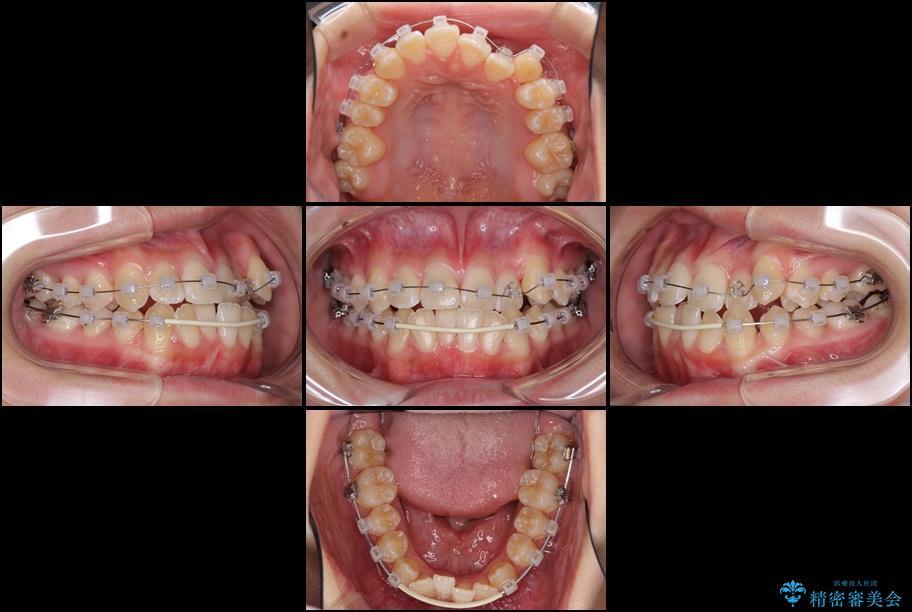 上顎の骨を拡大 抜歯せずに行う八重歯の矯正治療 治療後画像