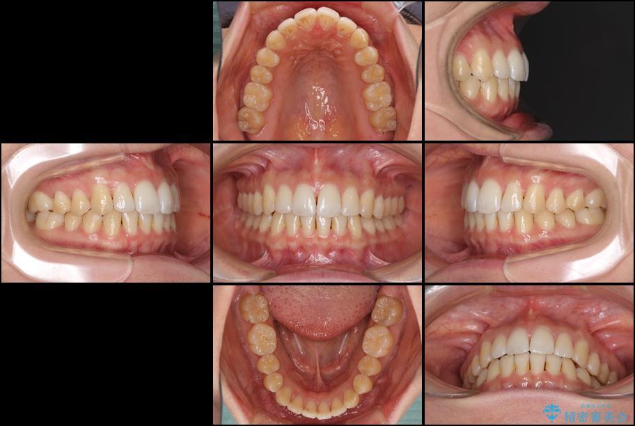 インビザラインで前歯のでこぼこを改善 アフター