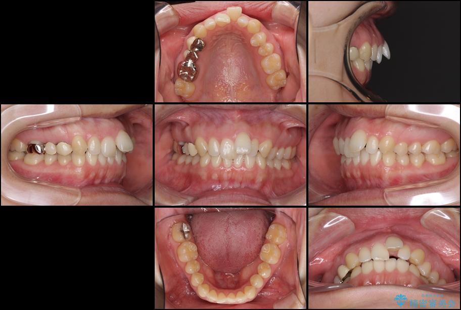 前歯の出っ歯を抜歯矯正で改善 整った歯並びに 治療前画像