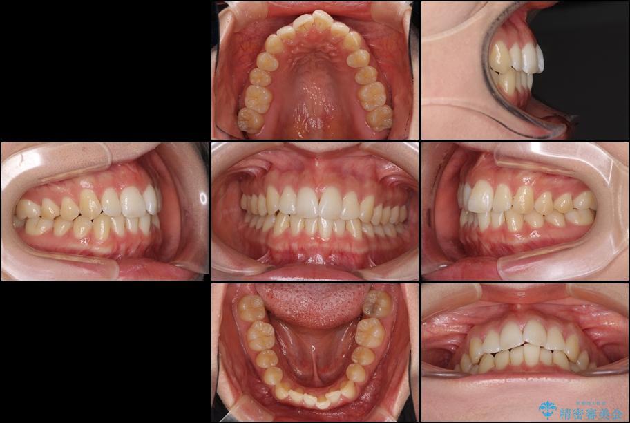 インビザラインで前歯のでこぼこを改善 治療前