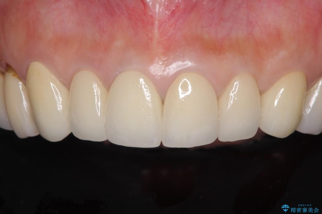 金属の色が見えてしまった前歯をオールセラミックに アフター