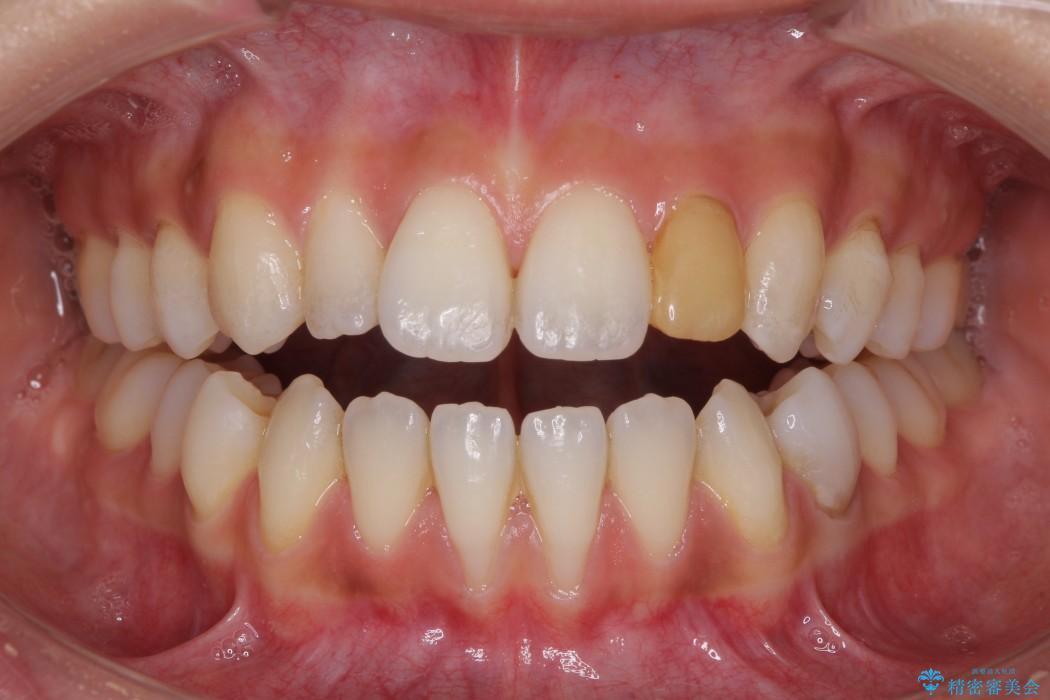 元々小さい歯の色、形をきれいにしたい 矮小歯のセラミック治療 治療前画像