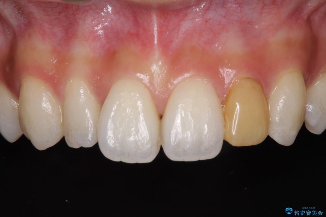 元々小さい歯の色、形をきれいにしたい 矮小歯のセラミック治療 ビフォー