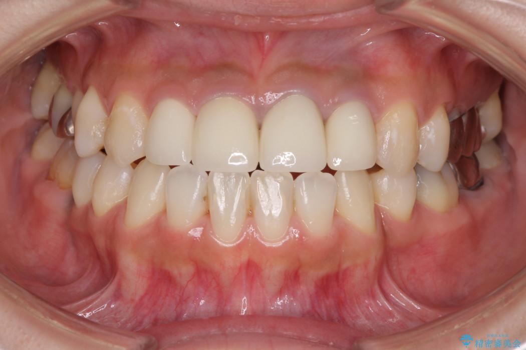 ホワイトニングで白くなった歯の色に合わせて補綴を入れたい アフター