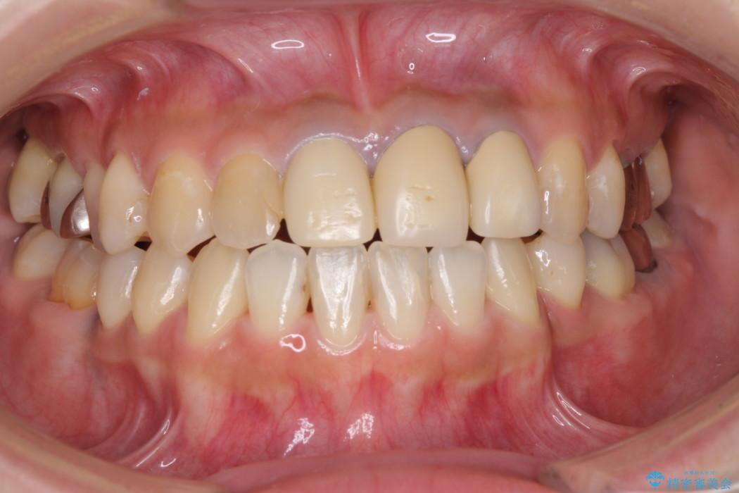 ホワイトニングで白くなった歯の色に合わせて補綴を入れたい ビフォー