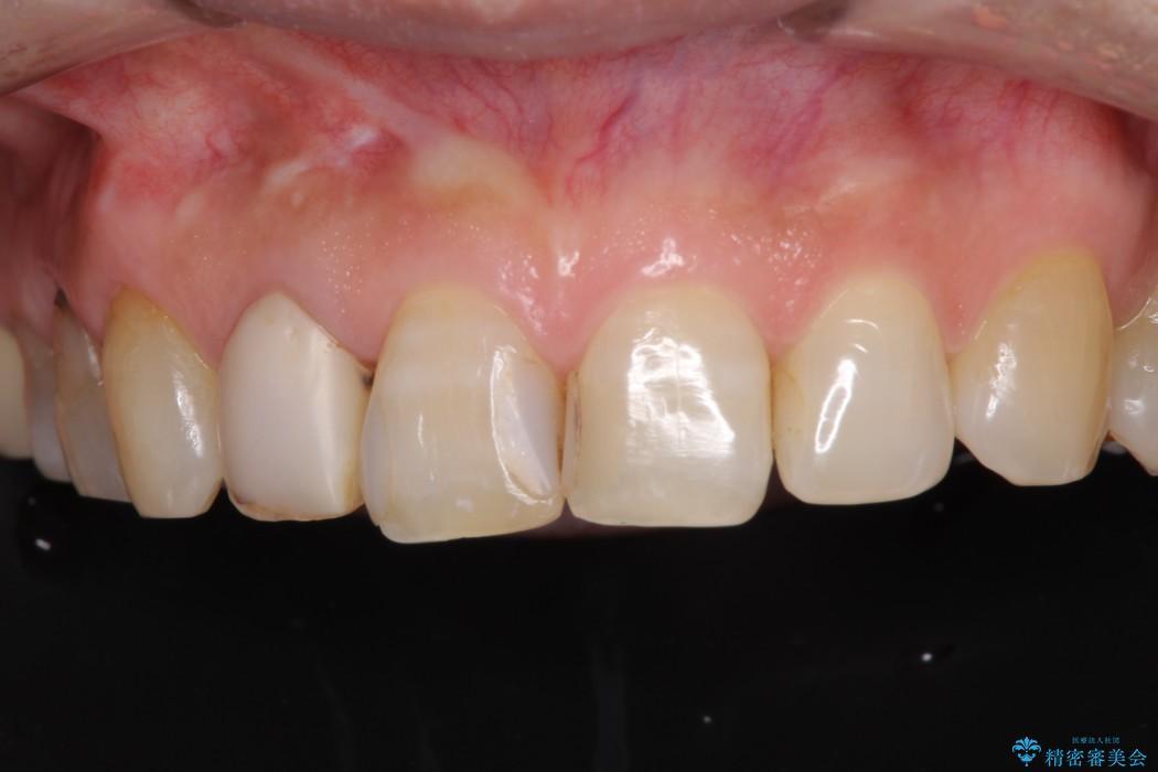 長年気にしていた前歯の変色をセラミックで自然な白さに ビフォー