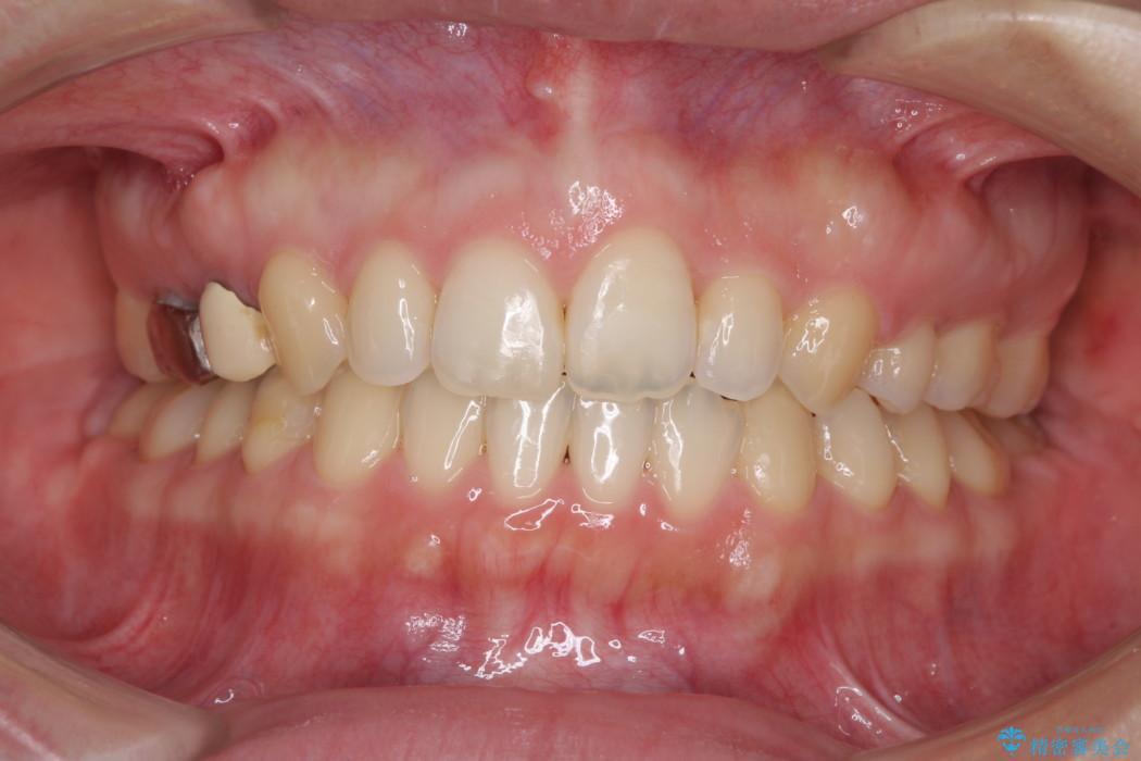 前歯の出っ歯を抜歯矯正で改善 整った歯並びに アフター
