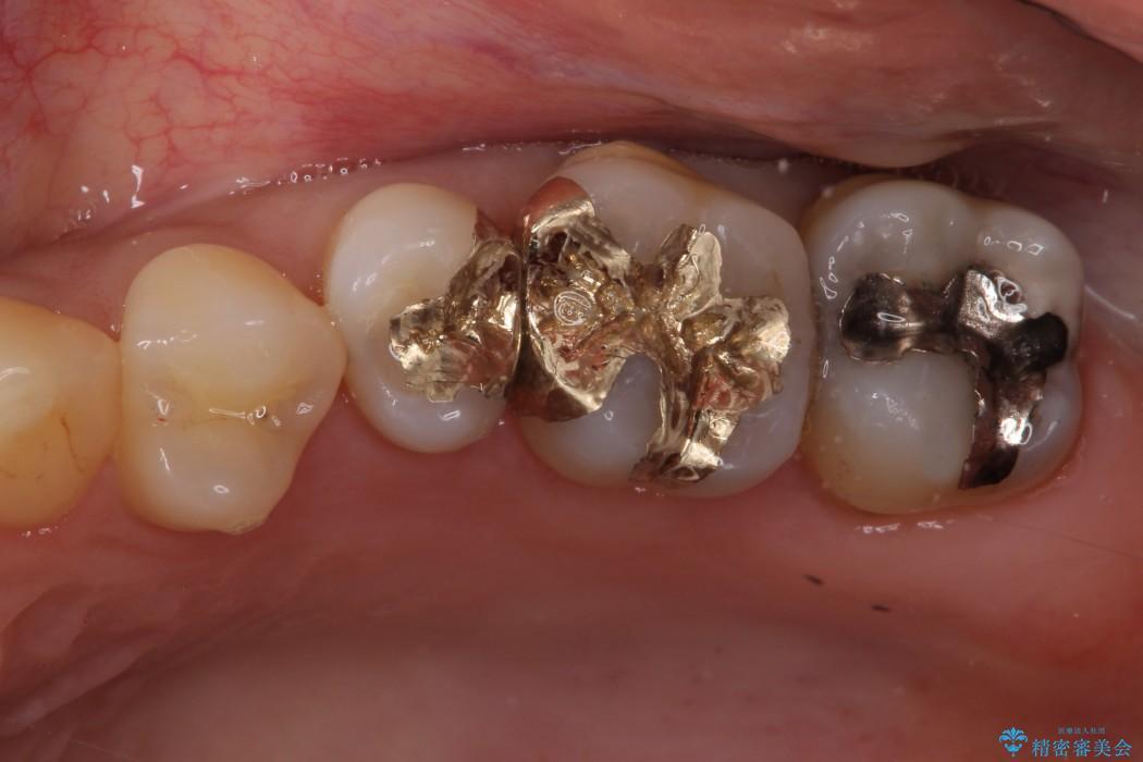 上顎奥の銀の詰め物をゴールドインレー(PGAインレー)へ アフター