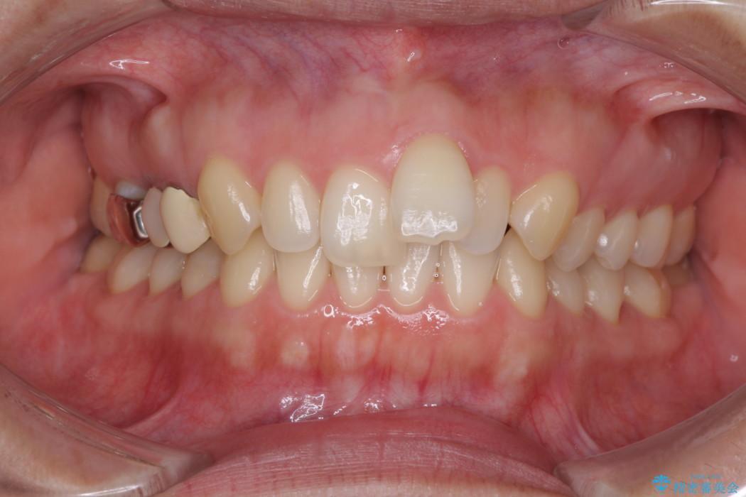 前歯の出っ歯を抜歯矯正で改善 整った歯並びに ビフォー
