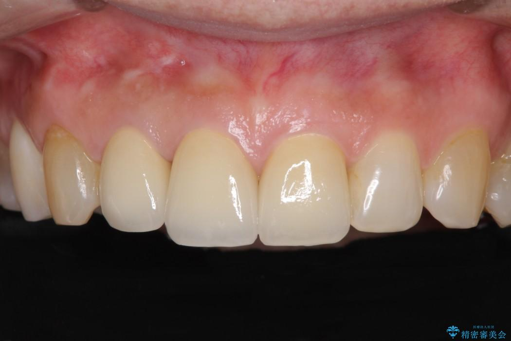 長年気にしていた前歯の変色をセラミックで自然な白さに アフター