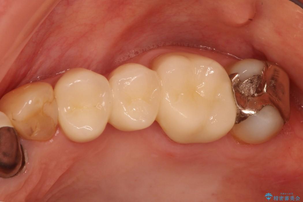 虫歯で上の奥歯が欠けた セラミックブリッジ治療 治療後画像