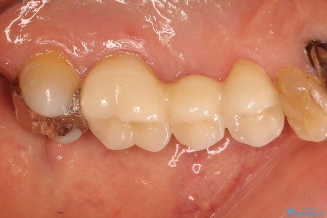 虫歯で上の奥歯が欠けた セラミックブリッジ治療 アフター