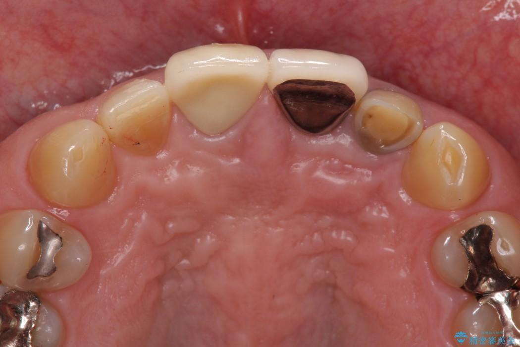 前歯の被せものがとれた メタルボンドからオールセラミッククラウンへ アフター