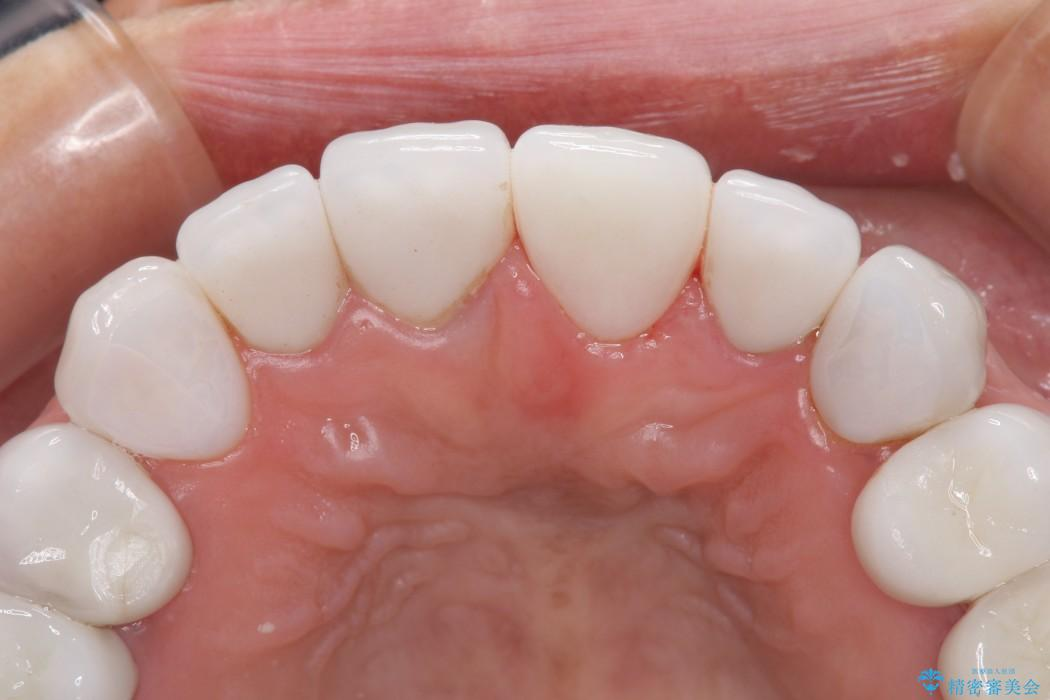 前歯の古い被せものがとれた セラミック再治療 アフター