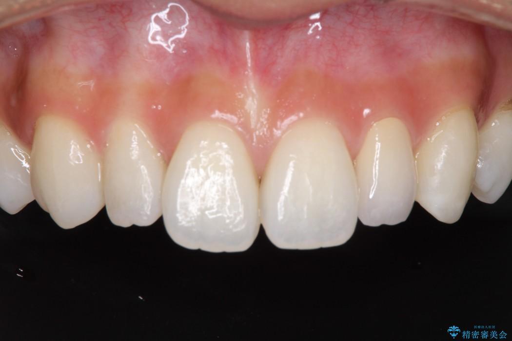 元々小さい歯の色、形をきれいにしたい 矮小歯のセラミック治療 アフター