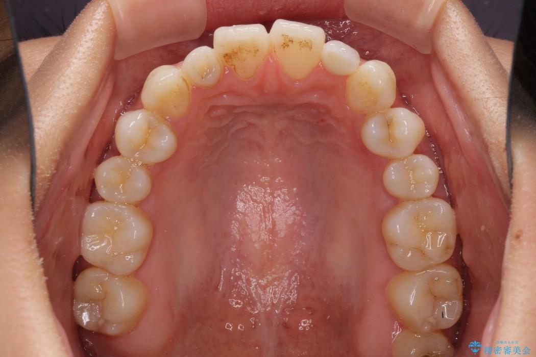 元々小さい歯の色、形をきれいにしたい 矮小歯のセラミック治療 治療後画像
