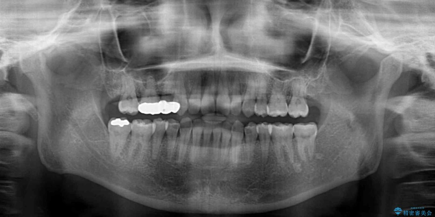 前歯の出っ歯を抜歯矯正で改善 整った歯並びに 治療後画像