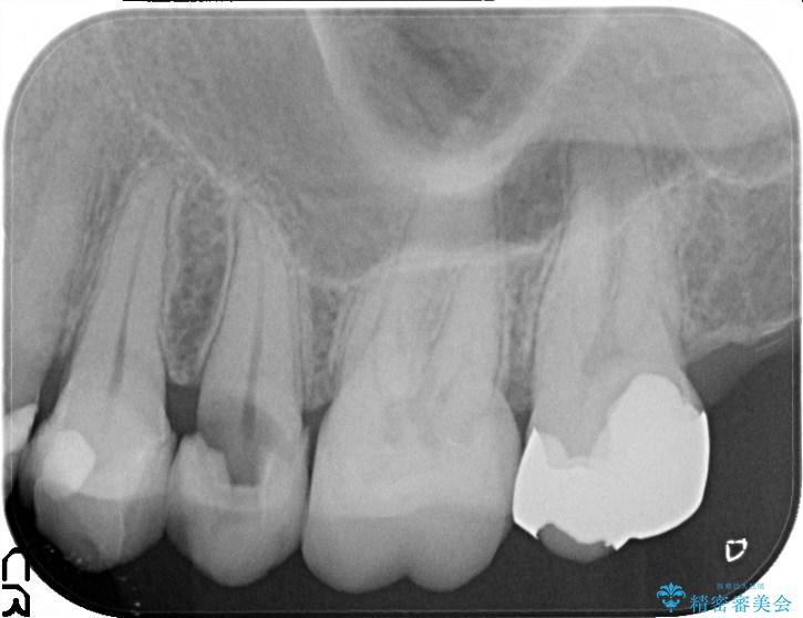 虫歯で上の奥歯が欠けた セラミックブリッジ治療 治療前画像