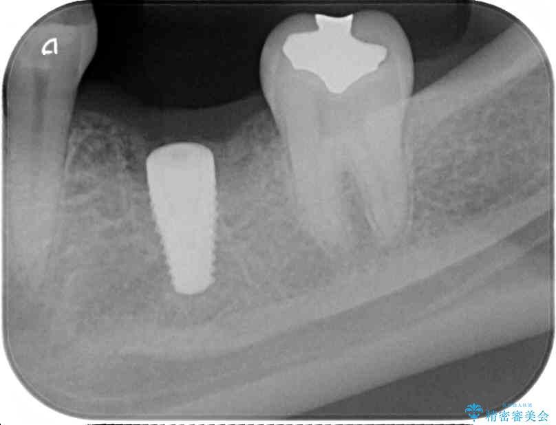奥歯が割れてしまった ストローマンインプラントによる咬合回復 治療前画像