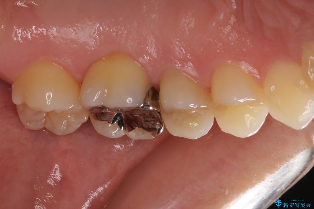 正面から見えてしまう銀歯 セラミックインレーで改善 ビフォー