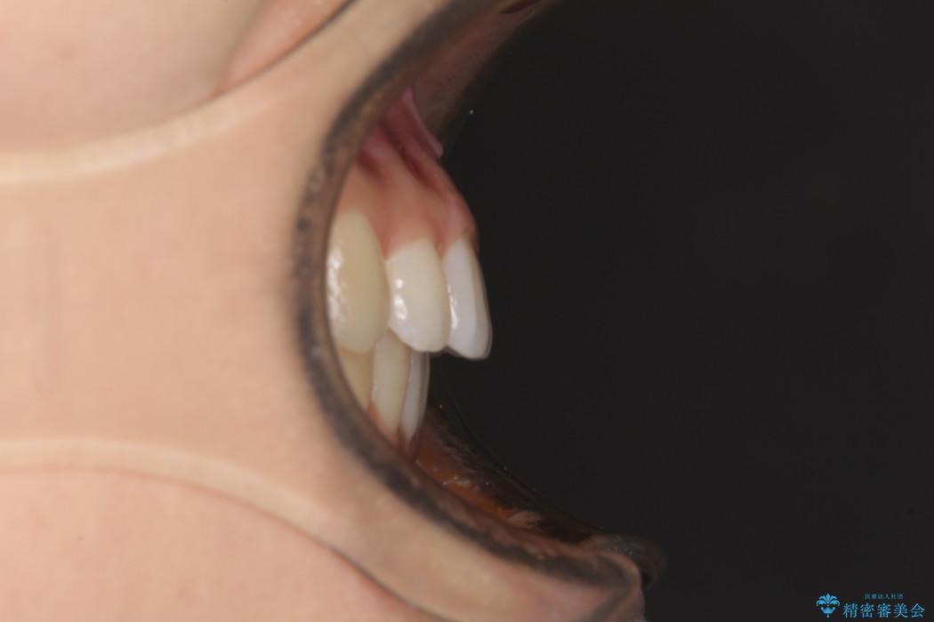 気になる上の出っ歯をインビザラインによる非抜歯矯正で治療 アフター