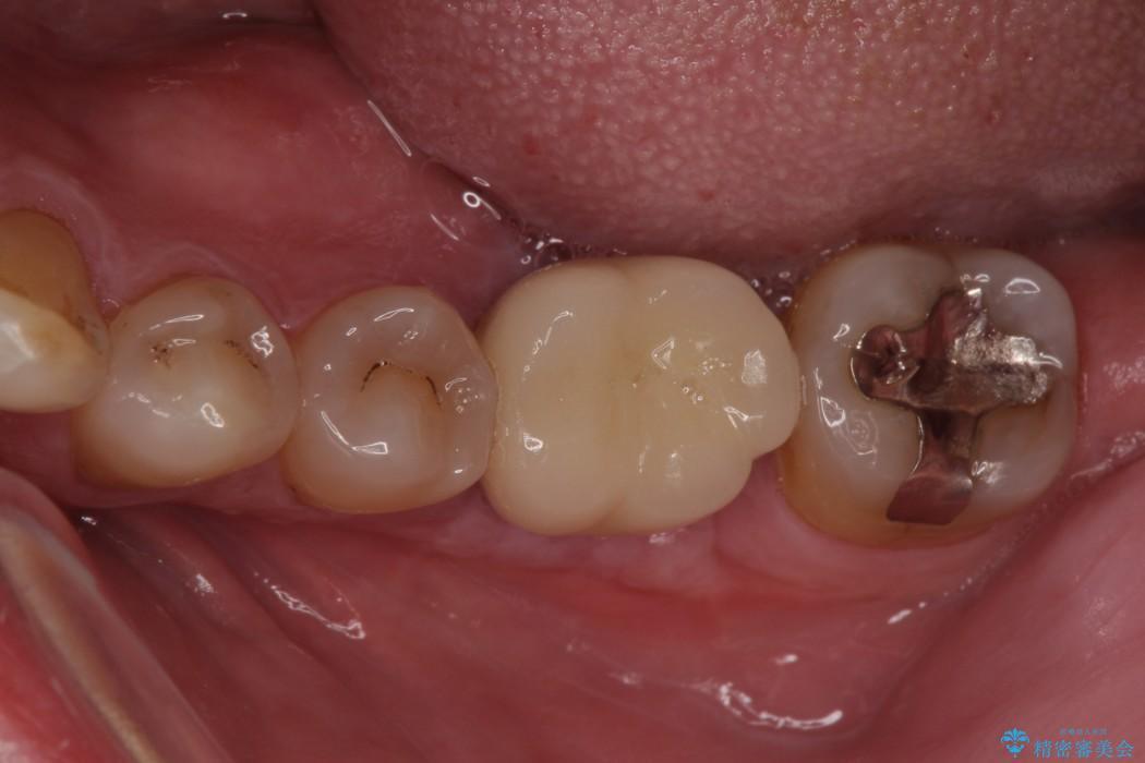 奥歯が割れてしまった ストローマンインプラントによる咬合回復 治療後画像