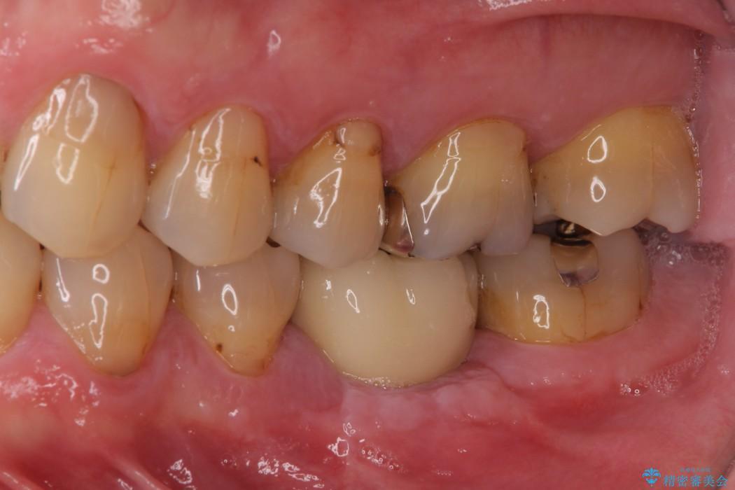 奥歯が割れてしまった ストローマンインプラントによる咬合回復 アフター