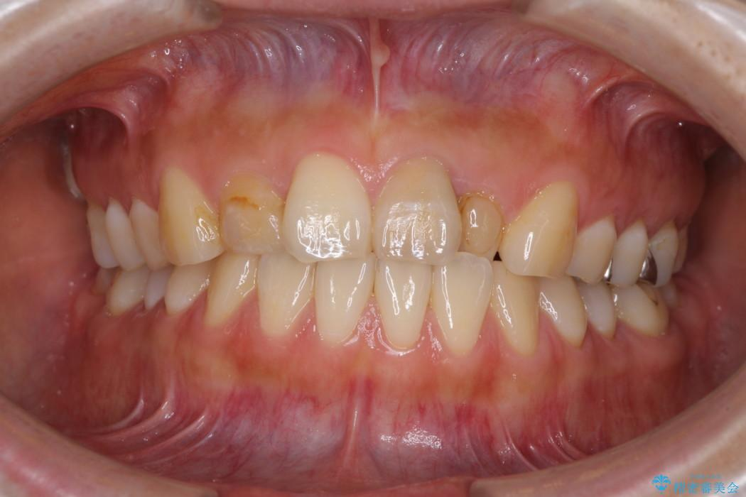 前歯のデコボコと変色を改善 インビザラインとオールセラミックによる治療 ビフォー