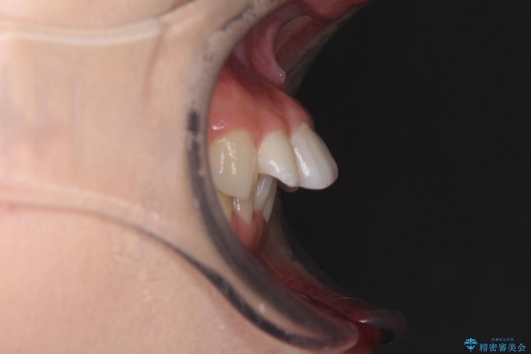 気になる上の出っ歯をインビザラインによる非抜歯矯正で治療 ビフォー