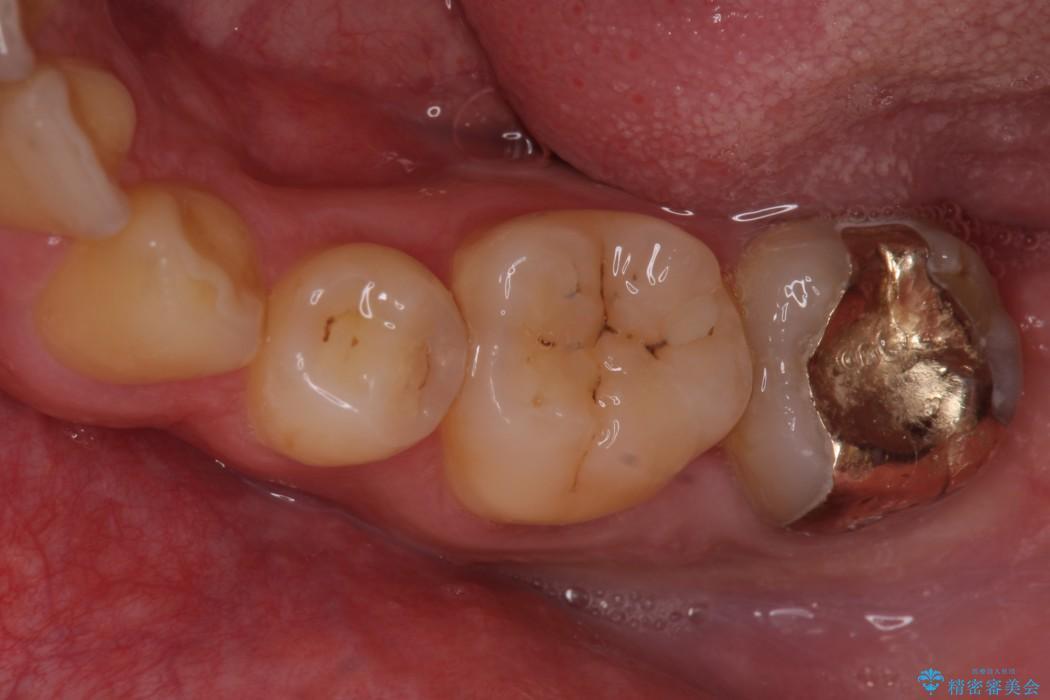 小さい虫歯の治療 歯にやさしいゴールドインレー ビフォー