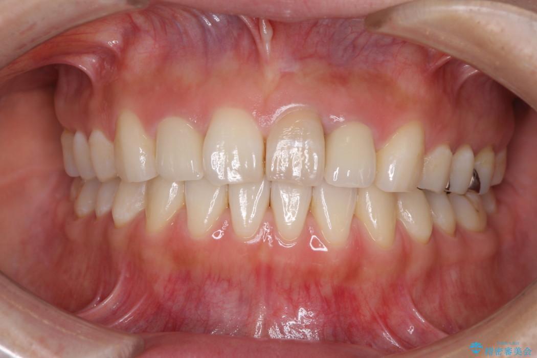 前歯のデコボコと変色を改善 インビザラインとオールセラミックによる治療 アフター