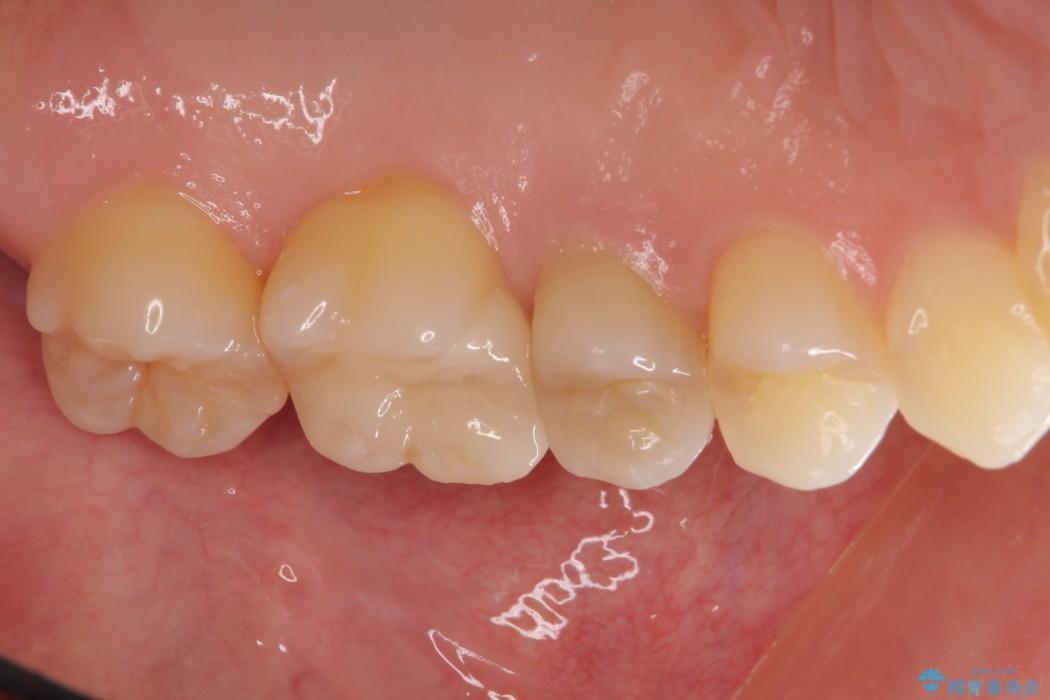 正面から見えてしまう銀歯 セラミックインレーで改善 アフター