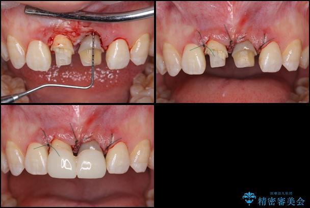 短い前歯を長くしたい 外科処置を用いた前歯のセラミック治療 治療後画像
