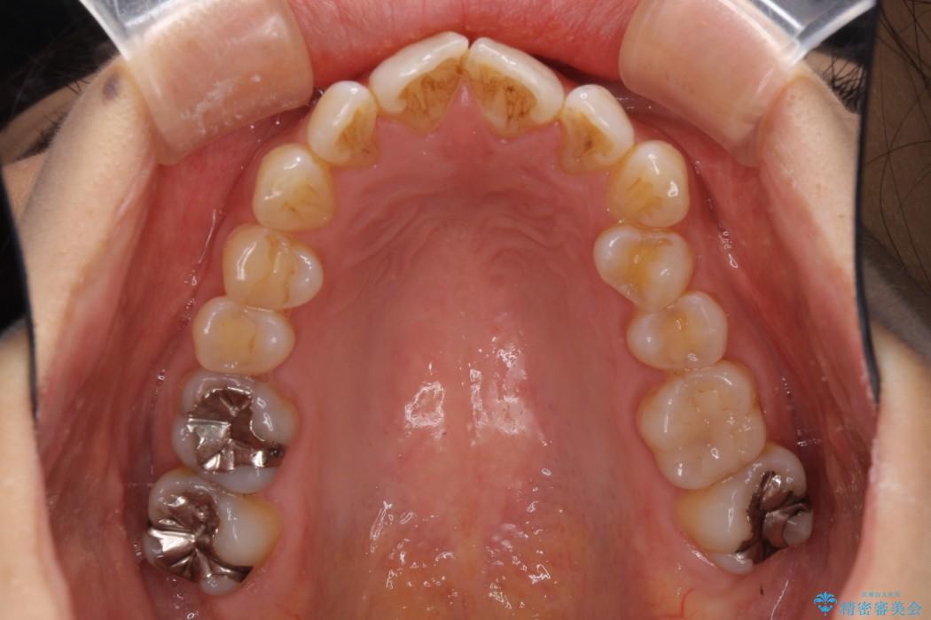 妊娠中でも綺麗な歯並びに インビザラインによる矯正治療 治療前