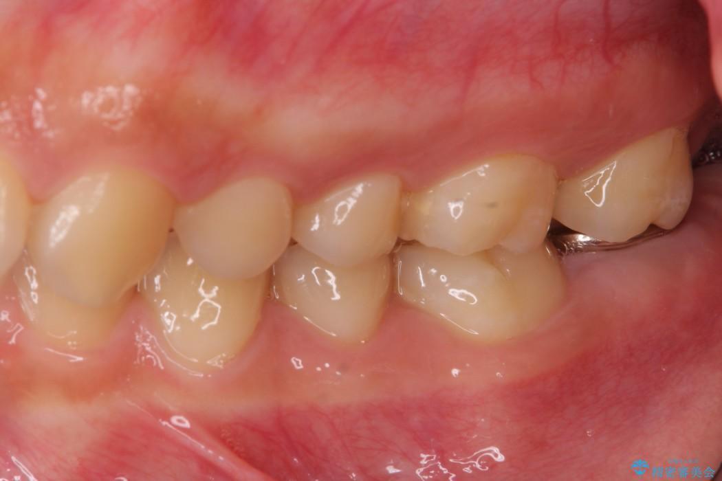 すぐ取れてしまう銀歯 短い歯を長くする処置 治療前画像