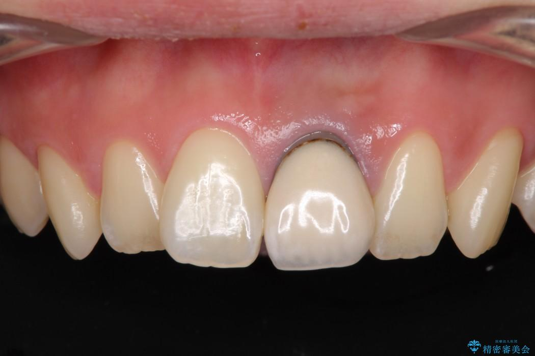 歯肉のラインが汚れている前歯 根管治療とセラミックによる審美治療 ビフォー